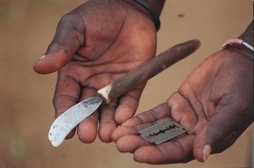 Mutilazioni genitali femminili, pratica tribale alla fine?