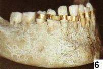 Quasi trecento anni fa Il primo dente artificiale 'moderno'