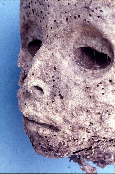 La mummia di un bimbo riscrive la storia del vaiolo
