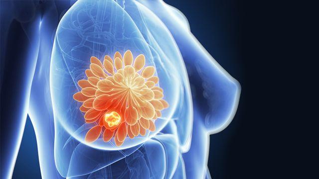 Tumore seno, scoperto interruttore molecolare