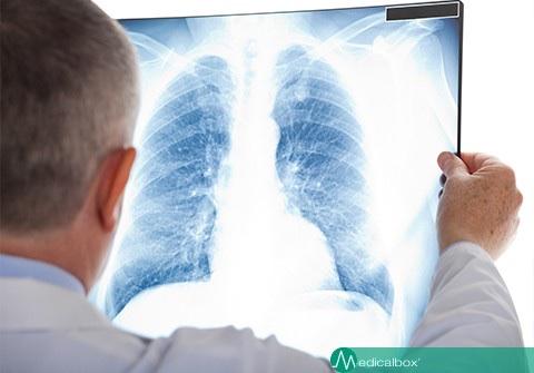 Covid-19: speranza da nuovi numeri. Per contagiati, polmoni a rischio per 6 mesi